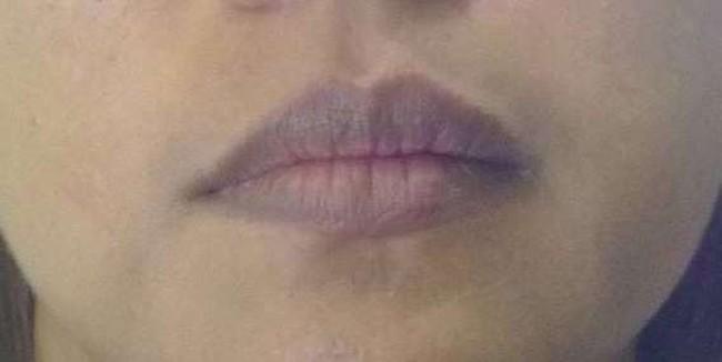Цианоз губ