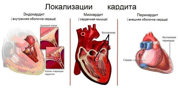 Варианты течения кардитов