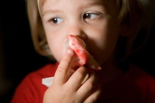 Носовое кровотечение у ребенка