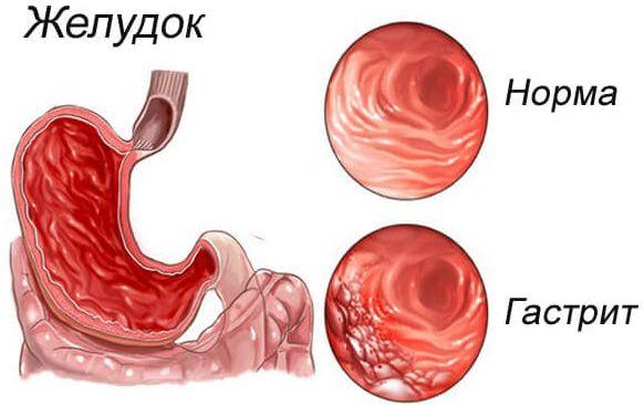 Слизистая желудка в норме и при воспалении (гастрите)