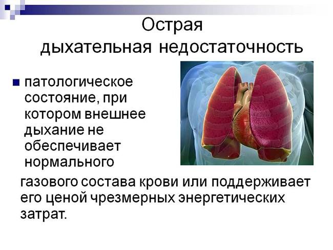 Определение дыхательной недостаточности