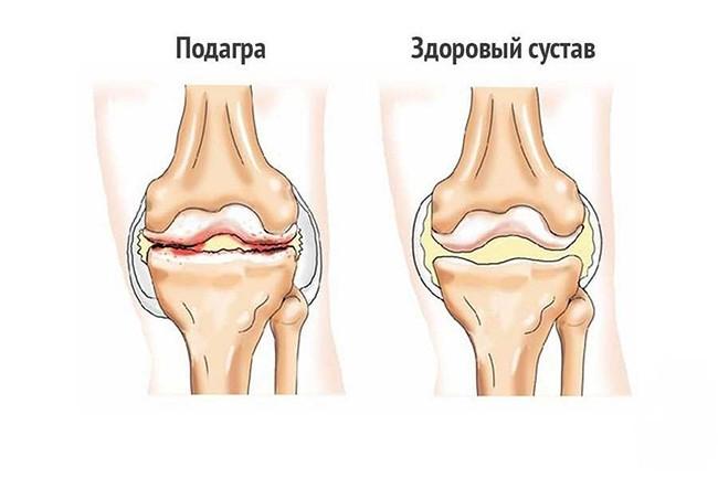 Изменение коленного сустава при подагре