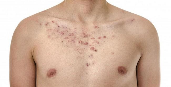 Сыпь на коже грудной клетки
