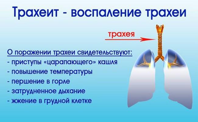 Симптомы трахеита