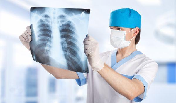 Врач рассматривает рентгенологический снимок легких
