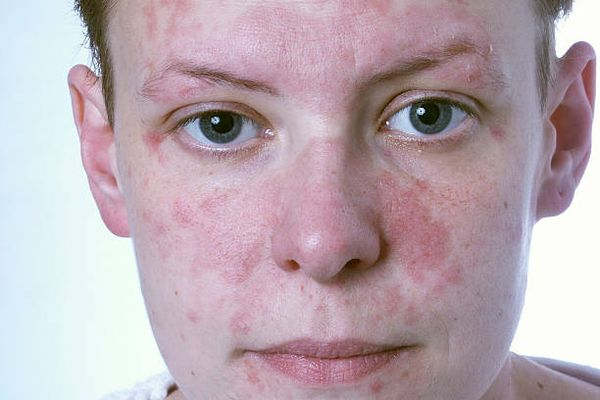 Аллергия на лице от курения
