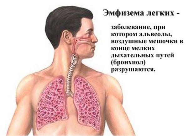 Определение эмфиземы легких