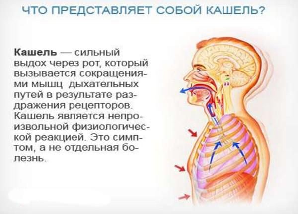 Определение понятия кашель