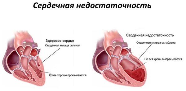 Изменения сердца при сердечной недостаточности
