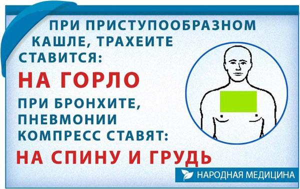 Места на теле для постановки компресса при разных видах кашля