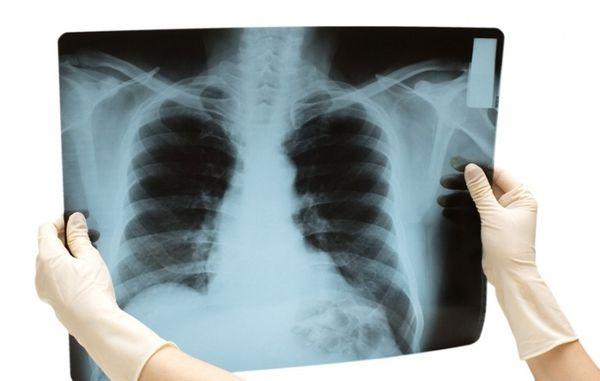 Рентгенологический снимок легких у больного человека