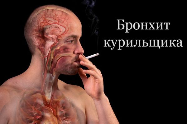 Возникновение бронхита у курильщиков