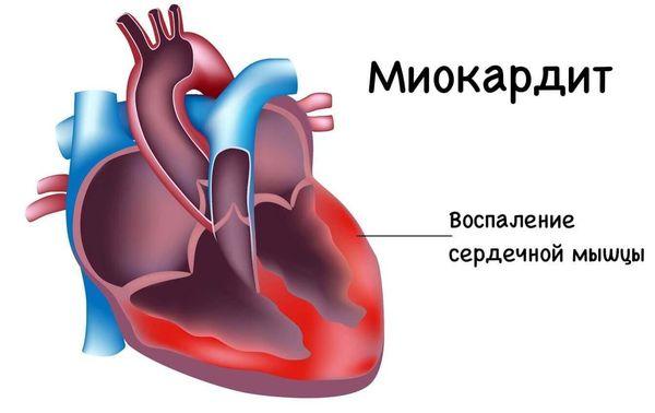 Миокардит