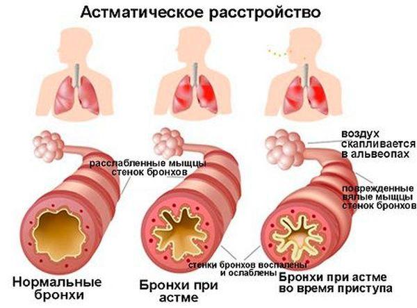 Бронхи человека в норме и при астме