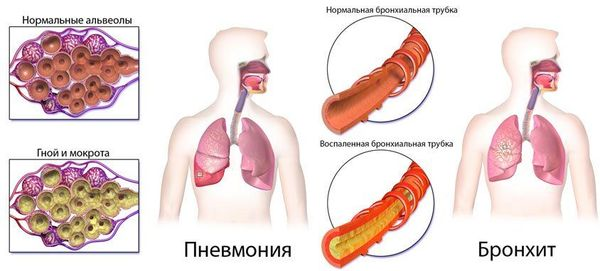 Пневмония и бронхит