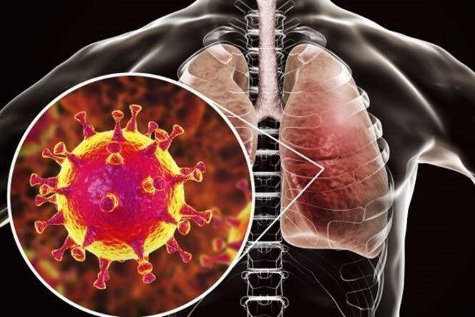Пневмония при коронавирусе